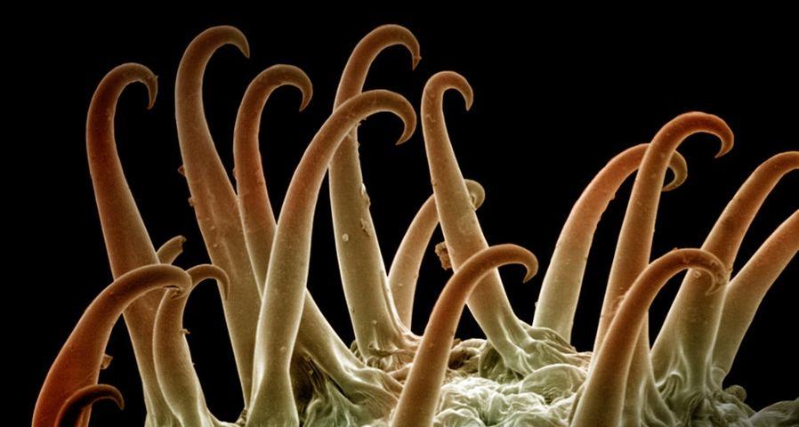 「オナモミ種子の電子顕微鏡写真」